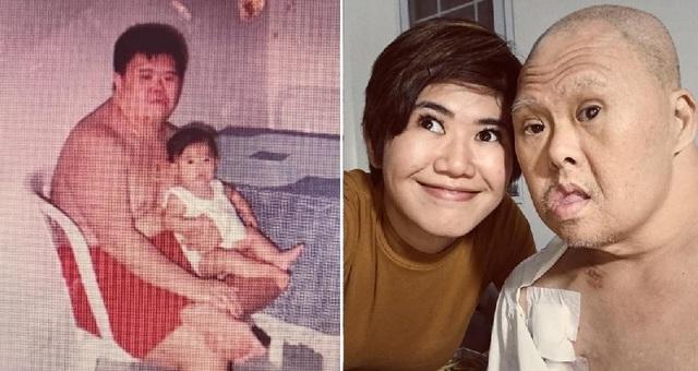 Cảm động thư mừng sinh nhật con gái viết tặng người cha mắc hội chứng Down - 1