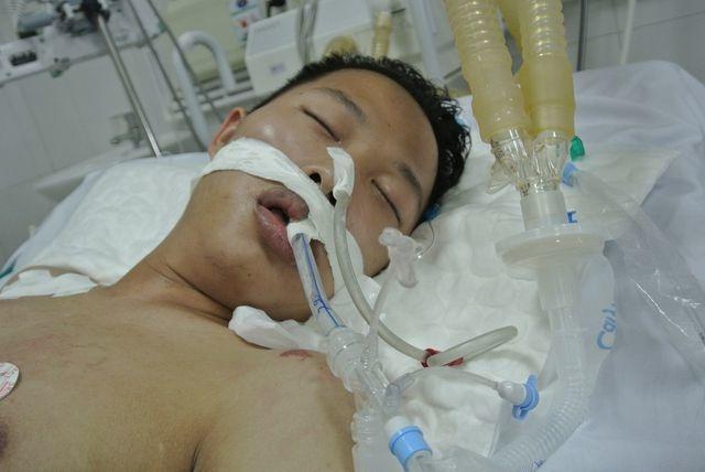 Hạnh phúc vỡ òa của chàng trai trẻ bị viêm não được cứu sống nhờ bạn đọc Dân trí - 1