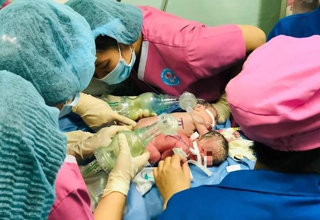 Hai bé gái sơ sinh dính nhau chung một hậu môn - 3
