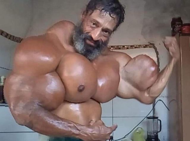 Tiêm dầu vào cơ thể, cơ bắp phồng như bóng, người đàn ông Brazil vẫn nghĩ mình… đẹp - 1