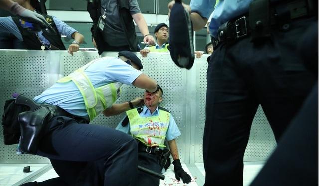 Hong Kong đối mặt biển người phản đối dự luật dẫn độ - 9