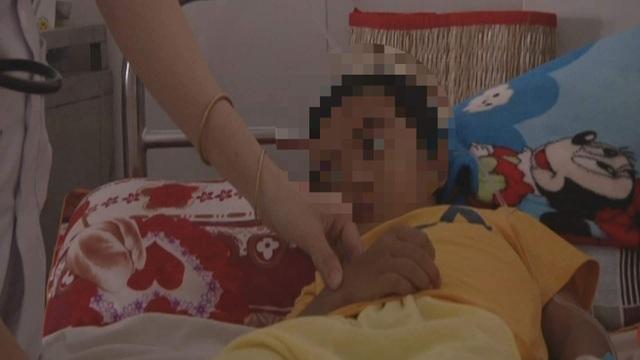 Đắk Lắk: Phẫu thuật tạo hình chuyển giới thành công cho bé gái 5 tuổi - 1