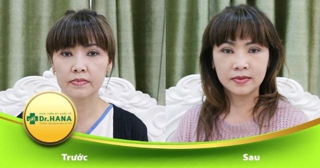 Bác sĩ Nguyễn Công Hân – Người xóa đi ám ảnh chảy xệ da tuổi trung niên - 3