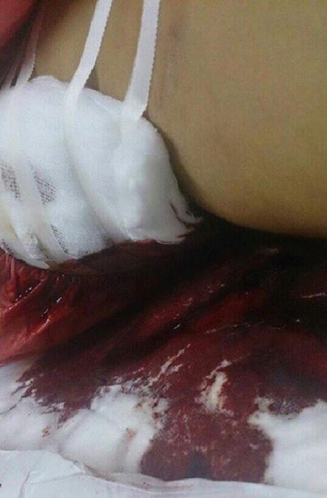 Mong muốn của bệnh nhân mắc bệnh máu khó đông - 2