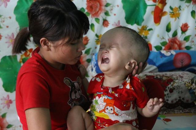 Bạn đọc Dân trí giúp đỡ bé trai bị não úng thủy gần 212 triệu đồng - 2