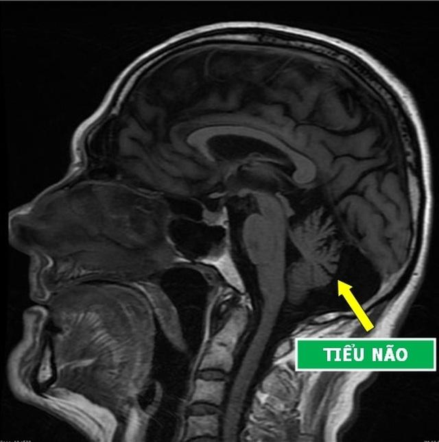 Những hình chụp X-quang giúp chúng ta hiểu hơn về cơ thể mình - 4