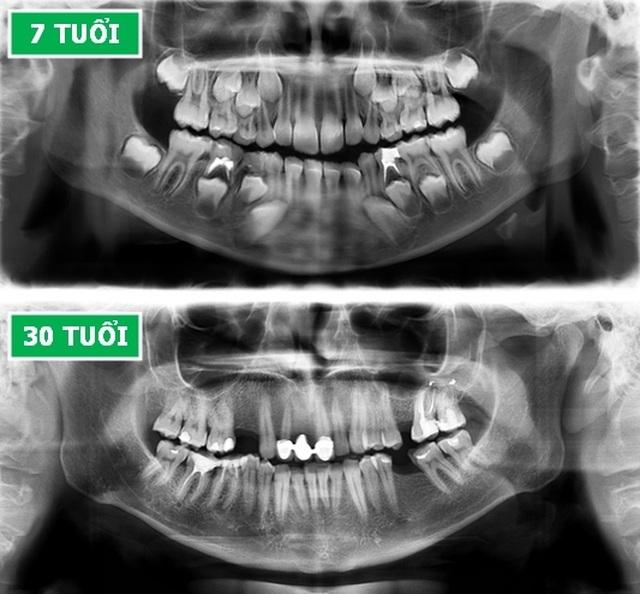 Những hình chụp X-quang giúp chúng ta hiểu hơn về cơ thể mình - 6