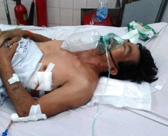 Khốn khổ vợ ung thư vật vã chăm chồng bị tai nạn giao thông gãy loạt xương sườn - 1