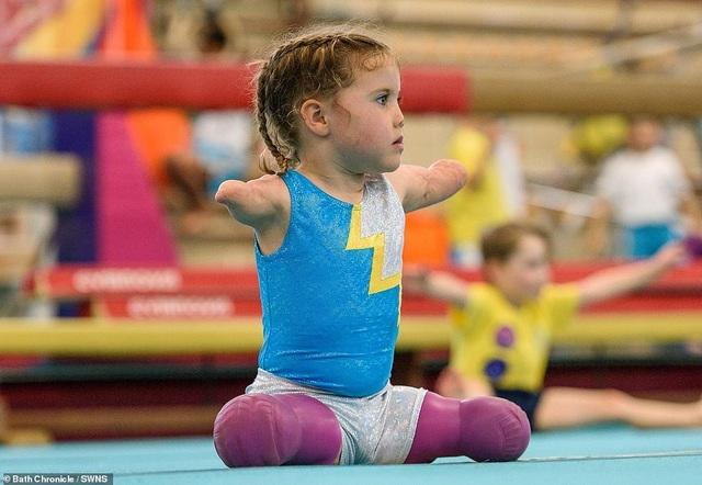 Kinh ngạc xem bé gái 5 tuổi mất tứ chi nhào lộn như siêu sao - 2