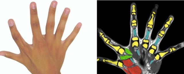 Có 6 ngón tay không vô dụng như các bác sĩ từng nghĩ - 1