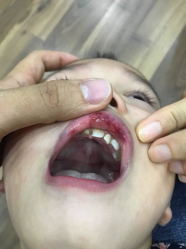 """Hà Nội: Cô giáo """"vuốt"""" má bé 3 tuổi hằn cả bàn tay và tụ máu môi - 2"""