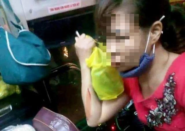 Xe khách bị ném gạch vỡ kính, một nữ hành khách bị thương - 2