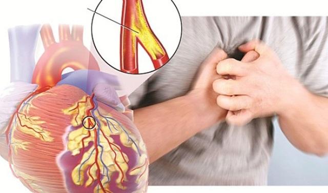 Coi thường mỡ nhiễm máu - Những biến chứng nguy hiểm không ngờ - 1
