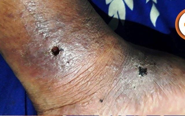 Bàn chân thủng lỗ chỗ vì căn bệnh tự dị ứng nguy hiểm - 1