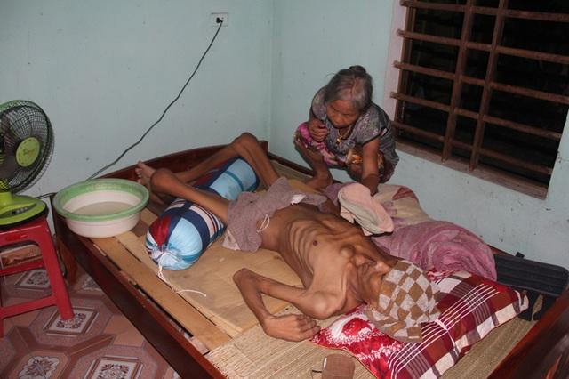 Tận cùng nỗi đau của người đàn ông đơn độc bị bệnh tật đọa đày gầy trơ xương - 1