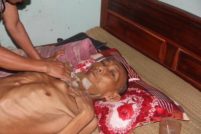 Tận cùng nỗi đau của người đàn ông đơn độc bị bệnh tật đọa đày gầy trơ xương - 8
