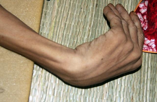Tận cùng nỗi đau của người đàn ông đơn độc bị bệnh tật đọa đày gầy trơ xương - 4