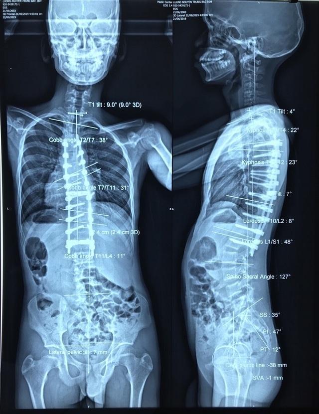 Nam thanh niên có cột sống uốn lượn như… xương rắn - 3
