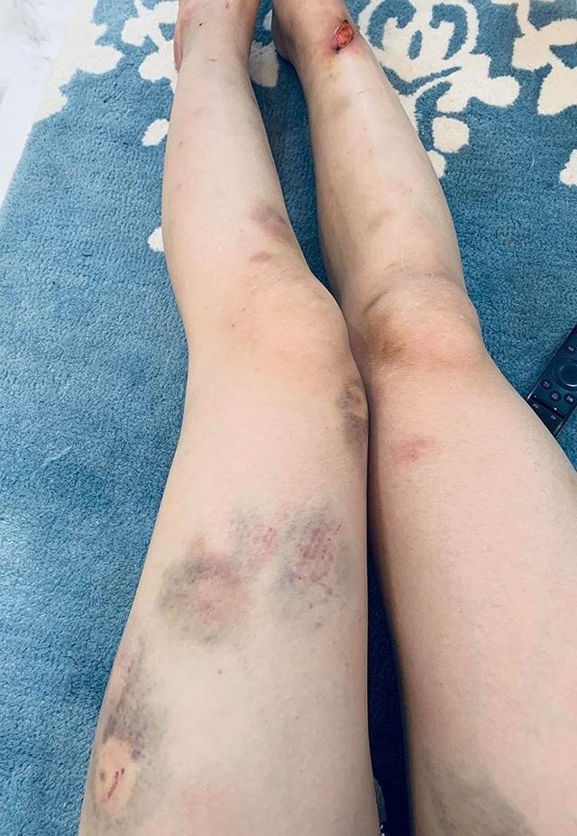 """""""Quỳnh búp bê"""" xuất hiện với đôi chân bầm dập sau nửa tháng """"mất tích"""" - 3"""