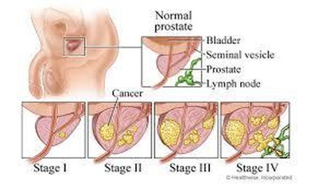 PUR: Test quý để lượng giá mức độ ung thư tiền liệt - 4