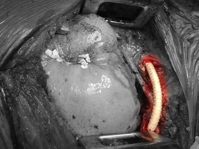 Nam bệnh nhân mang khối u to như quả bóng trong lồng ngực - 2