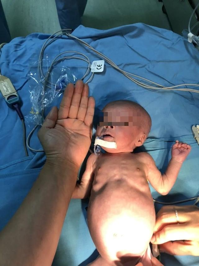 Trái tim lớn hơn ngón tay cái hồi sinh sau 2 lần phẫu thuật - 2
