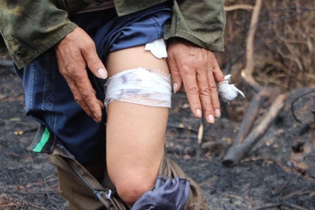 Người đàn ông đặc biệt trong vụ cháy rừng kinh hoàng ở Hà Tĩnh - 5