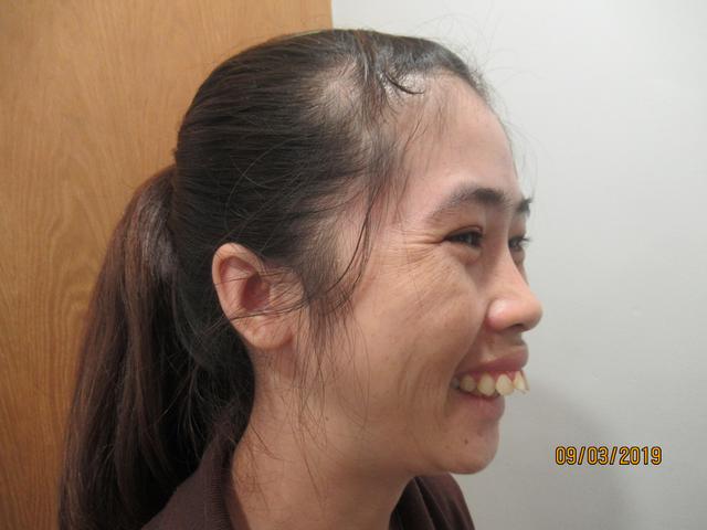 Rơi nước mắt với câu chuyện ngặt nghèo của nữ công nhân khiếm khuyết ngoại hình - 2
