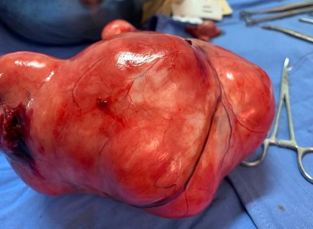 Khối u xơ tử cung ở người phụ nữ 60 tuổi