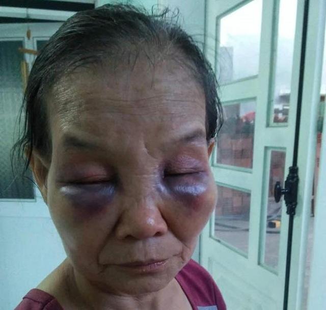 Con dâu đánh mẹ chồng ở Bình Phước bị phạt 2 triệu, tiết lộ thêm câu chuyện - 1
