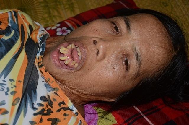 Người đàn bà nửa thế kỉ mang hàm răng kì dị và chưa một lần ngoái cổ - 1