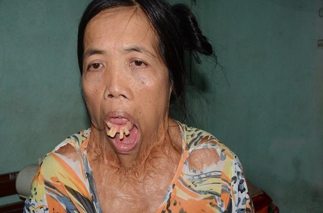 Người đàn bà nửa thế kỉ mang hàm răng kì dị và chưa một lần ngoái cổ - 3