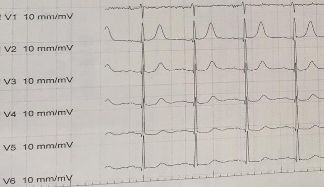 Nhịp tim lên tới 300 lần mỗi phút nam bệnh nhân suýt đột tử - 2