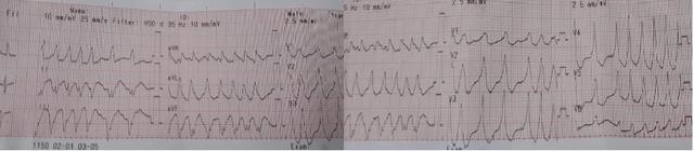 Nhịp tim lên tới 300 lần mỗi phút nam bệnh nhân suýt đột tử - 1