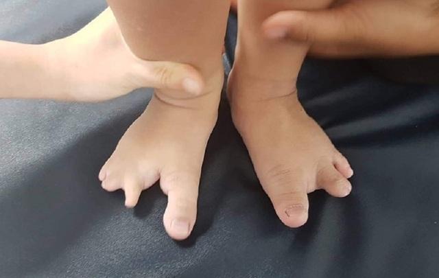 Bé trai có bàn tay, bàn chân như càng tôm hùm - 2