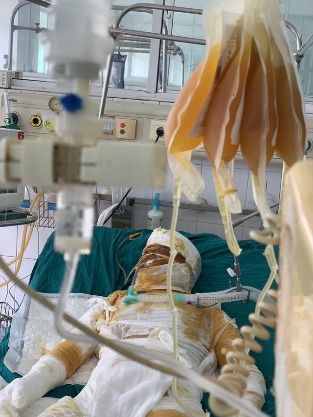 Đớn đau thảm cảnh gia đình 4 người bị thiêu sống: Hãy cứu tính mạng 2 bà cháu - 7