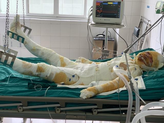 Báo Dân trí trao nóng 20 triệu đồng cứu chữa 2 bà cháu sống sót trong vụ hoả hoạn - 2