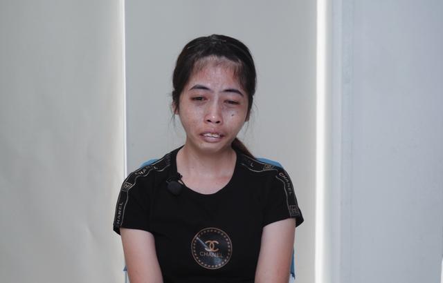 Từng bị kì thị vì ngoại hình, 9X Bình Thuận thay đổi ngoạn mục - 1