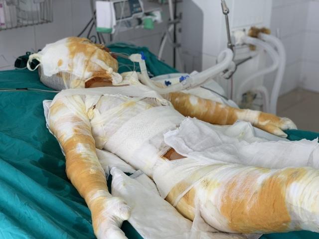 Đớn đau thảm cảnh gia đình 4 người bị thiêu sống: Hãy cứu tính mạng 2 bà cháu - 8