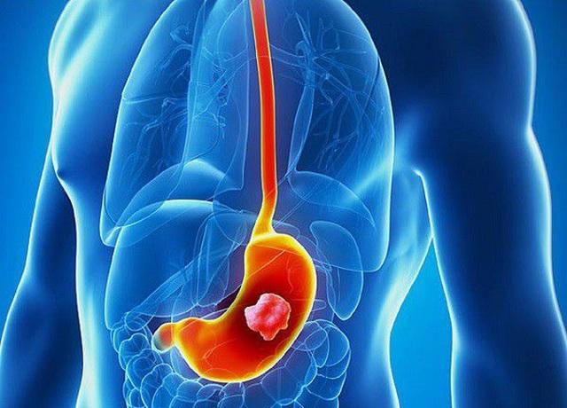 Bác sỹ viện K chỉ ra sai lầm ăn uống, khiến nhiều người Việt mắc ung thư dạ dày - 1