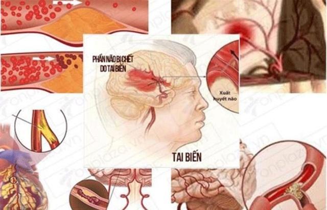 Nattospes hỗ trợ cải thiện di chứng tai biến mạch máu não như thế nào? - 1