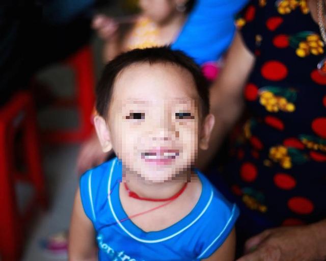 Phẫu thuật miễn phí cho hàng trăm trẻ em hở hàm ếch của 5 tỉnh miền Trung - 8