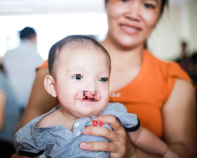 Phẫu thuật miễn phí cho hàng trăm trẻ em hở hàm ếch của 5 tỉnh miền Trung - 9