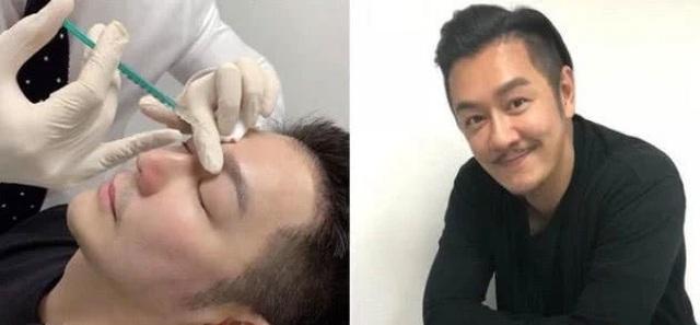Lạm dụng dao kéo thẩm mỹ, gương mặt của Trần Hạo Dân ngày càng kỳ quặc - 7