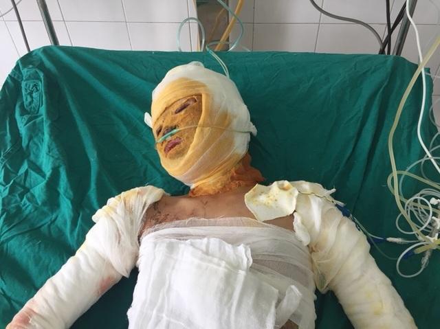 Vụ cả nhà 4 người bị thiêu sống, bé gái 9 tuổi đã tỉnh lại - 5