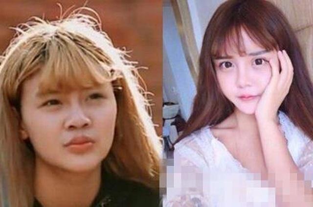 Cô gái Trung Quốc 20 tuổi phẫu thuật thẩm mỹ tổng cộng 33 lần - 2