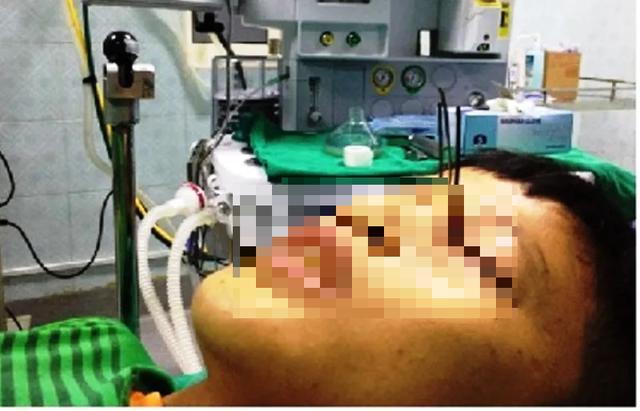 Kinh hoàng bé trai 13 tuổi bị 3 mũi tên găm vào hốc mắt - 1