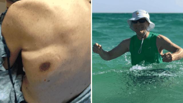 Ra biển tắm, người đàn ông trở về với vết bầm, hai ngày sau tử vong đau đớn - 1