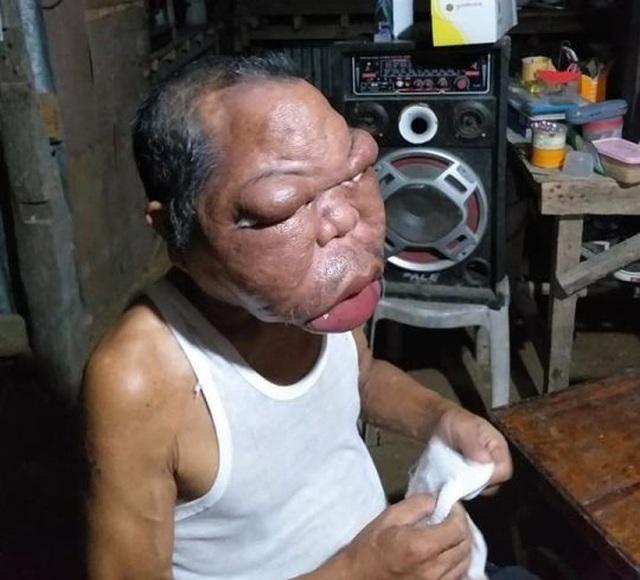 Người đàn ông nghèo mắc bệnh lạ khiến mặt sưng phồng to gấp 3, 4 lần - 3