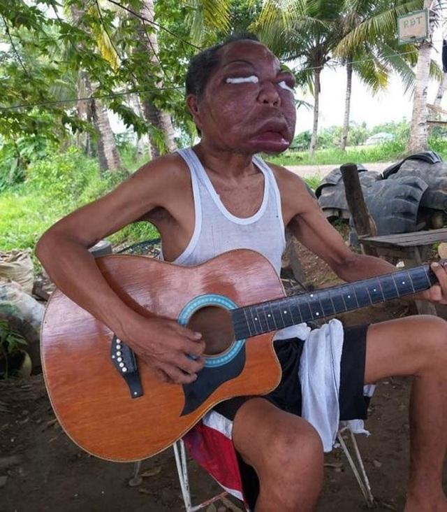 Người đàn ông nghèo mắc bệnh lạ khiến mặt sưng phồng to gấp 3, 4 lần - 5